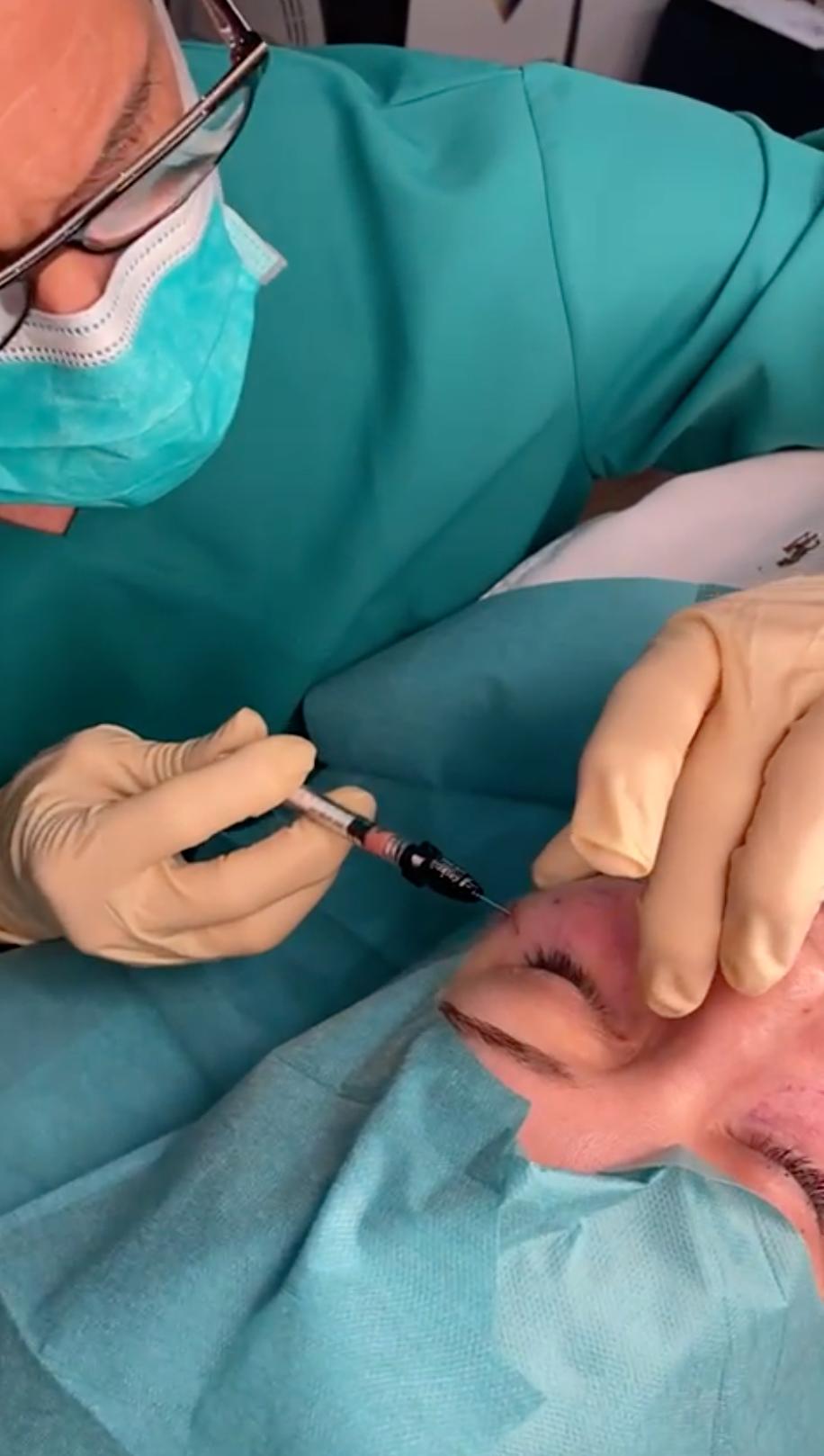 Tratamiento de la ojera con relleno de grasa autóloga en NAAC